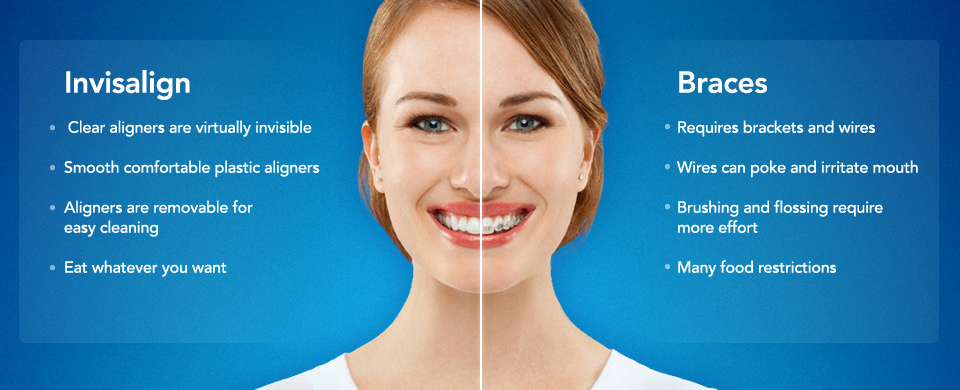 Introduction to Invisalign