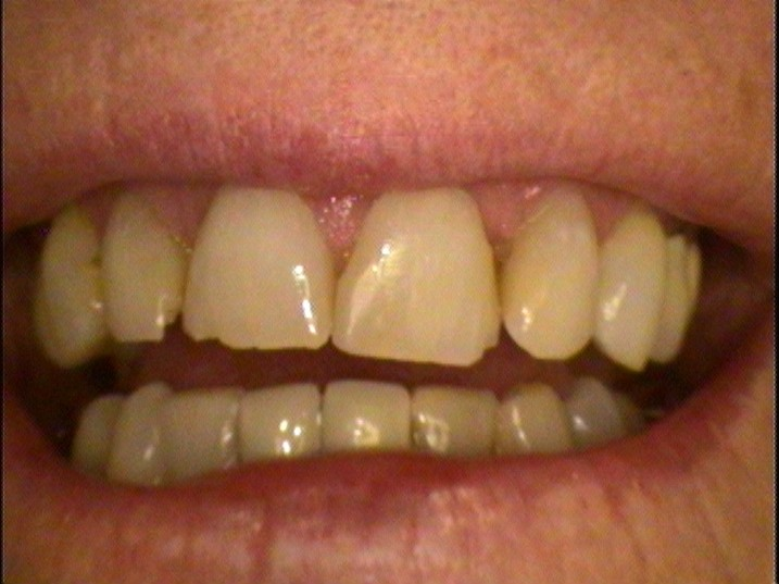 Teeth Before Dental Work
